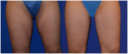 Thigh Lift Treatment in Coimbatore