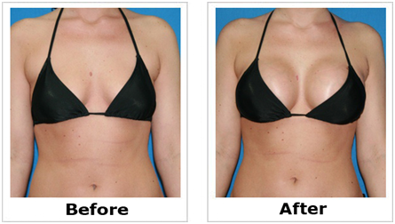 Breast Agumentation in Coimbatore