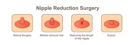 Breast Reduction Surgery in Coimbatore