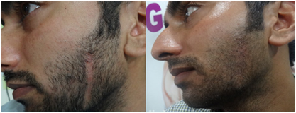 Scar Treatment in Coimbatore